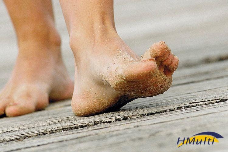 Como o calor afeta seus pés?