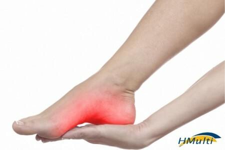 Fascite plantar: Qual relação à dor no calcanhar tem com as suas emoções?